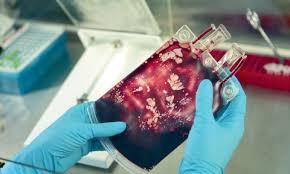 сбор и хранение стволовых клеток